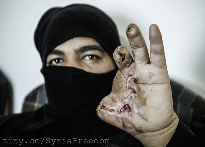 En syrisk mann hardt skadet under sammenstøtene mellom nasjonale styrker og opprørere i Syria. (Foto: Freedom House)