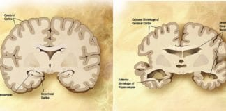 På venstre side ser du en normal fullt utvokst hjerne, mens til høyre ser du skadene på hjernen til en voksen person med Alzheimers. (Illustrasjon: Wikimedia Commons)