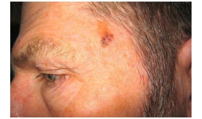 Et eksempel på hvordan føflekk-kreft kan se ut på overflaten. (Illustrasjonsfoto: Milomingo / Flickr.com / CC)