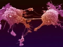 Slik ser lungekreft-celler ut. (Foto: Welcome Images/Flickr)