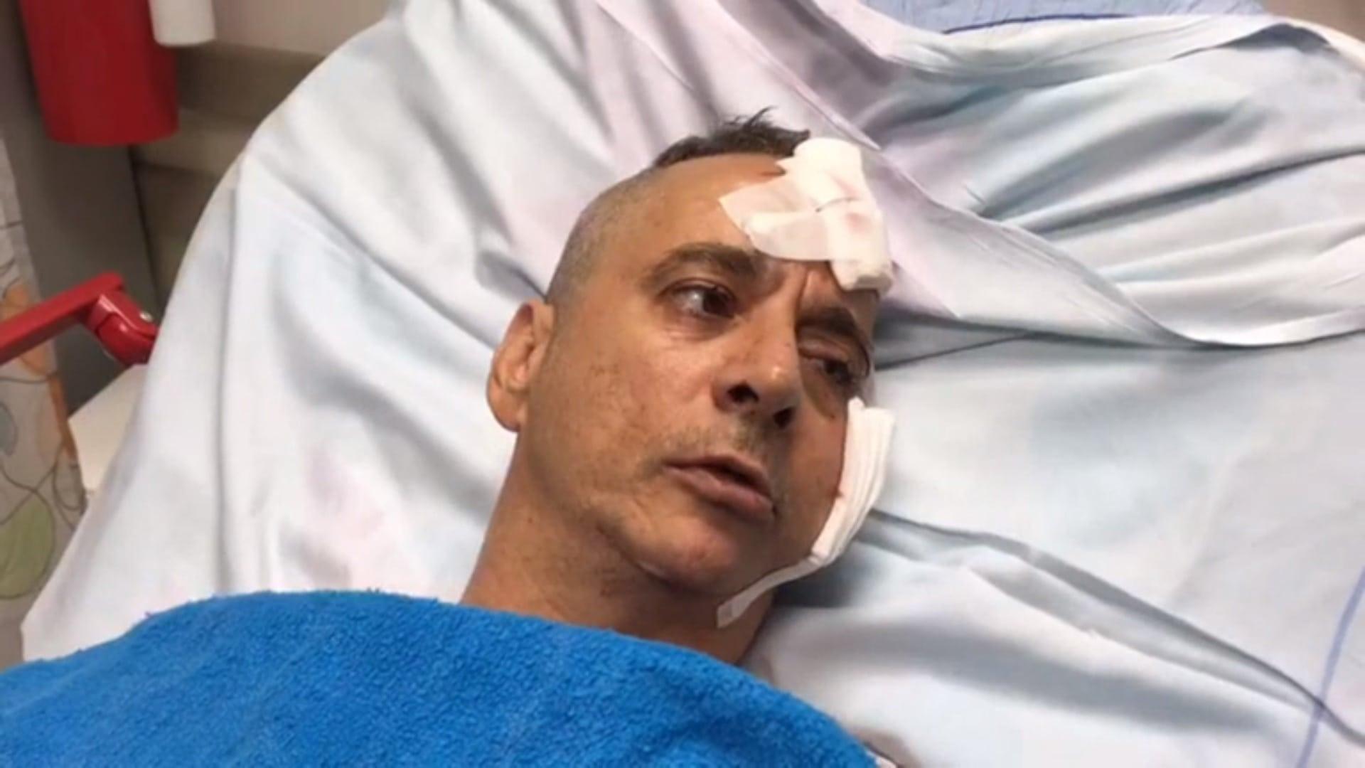 Aharon Bucharis sier det ikke var noen rakettalarm som advarte dem om det innkommende angrepet. (Foto: Barzilai Hospital Spokesperson)